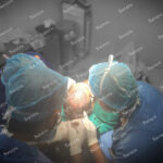 FUE Vs FUT Hair Transplant in Delhi