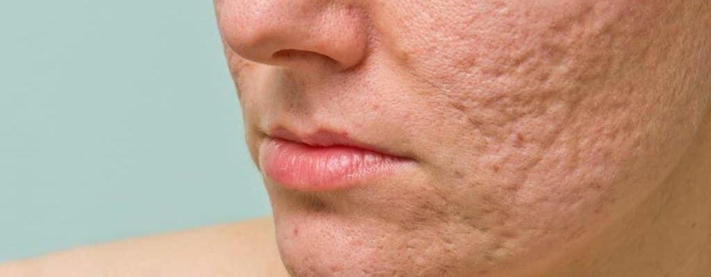 Best Spots & Acne Scar Treatment in Delhi