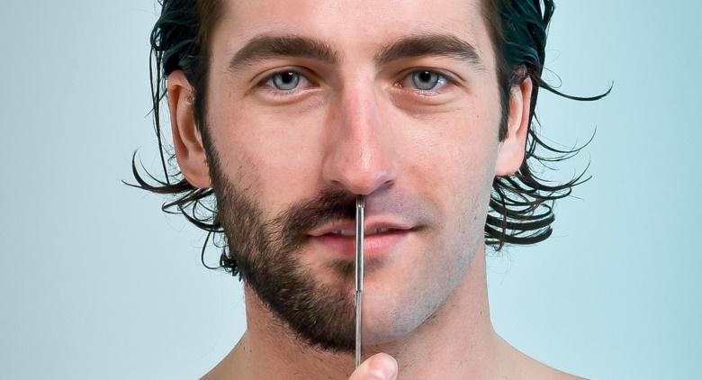 Facial Beard Hair Transplant in Delhi