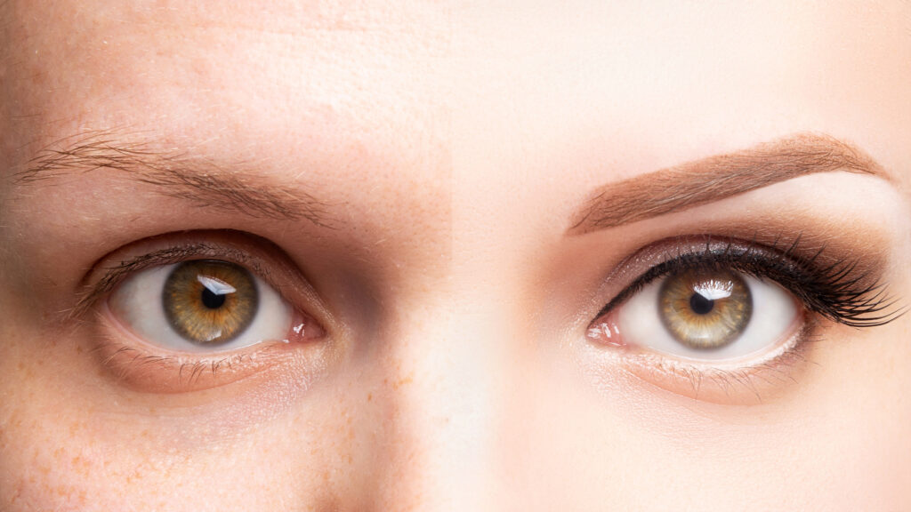 Eyebrow Thickness Treatment in Delhi