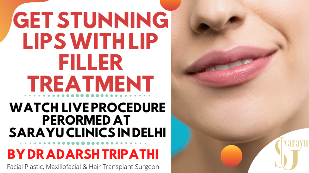 Lip Filler in Delhi | Dermal Lip Filler Live Procedure | Filler for Lip Augmentation in Delhi,India