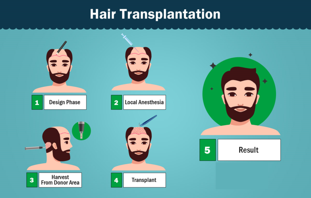 Which is best clinic for hair transplant in Delhi