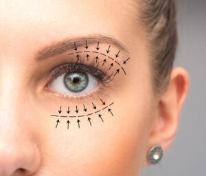 Blepharoplasty surgery cost in Delhi
