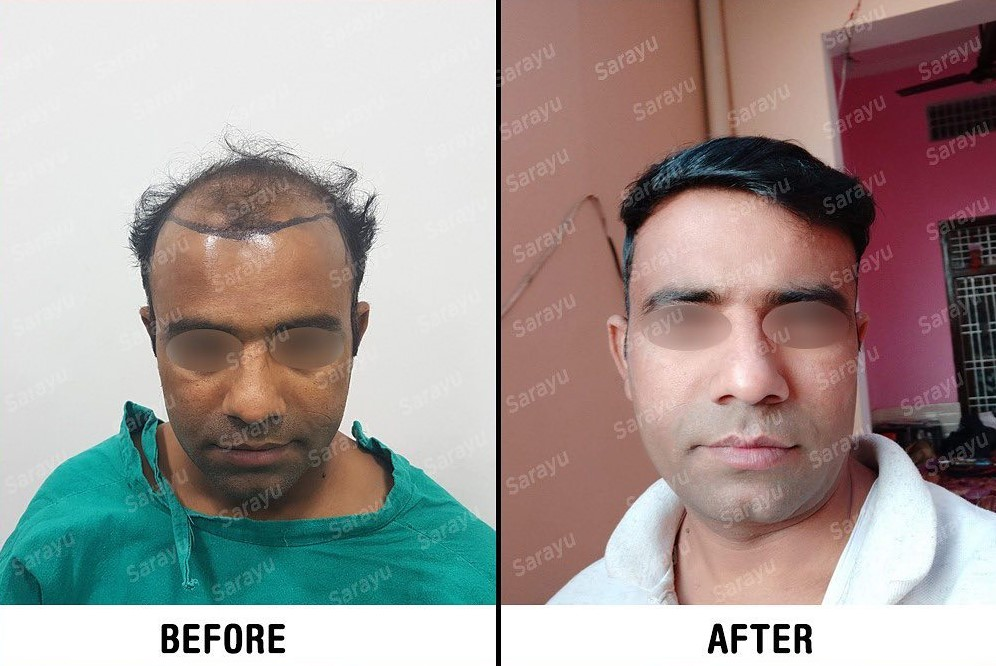 Best Hair Transplant Clinic with Best Hair restoration Results in Delhi