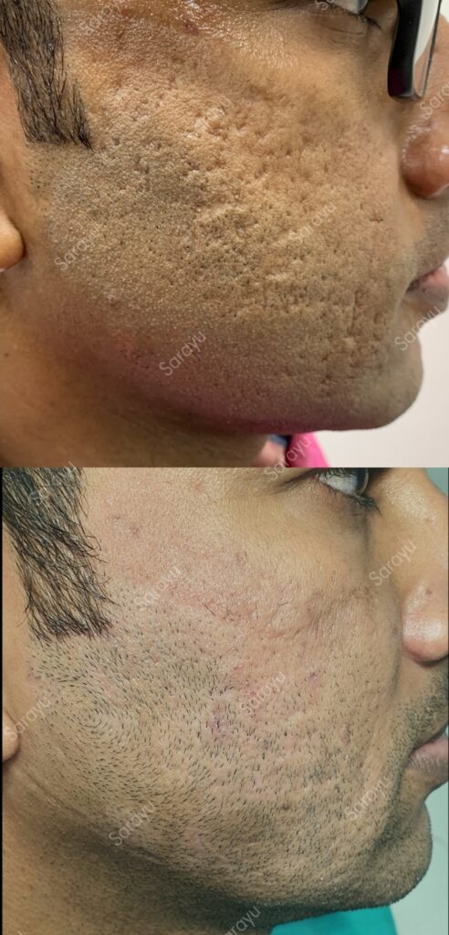 Acne Scar Treatment Cost in delhi