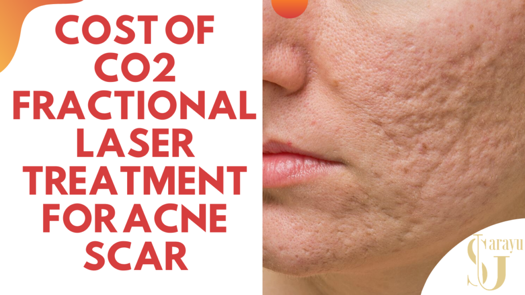 The cost of Acne Scar Removal with CO2 Laser Treatment varies from 2,500 to 10,000 INR per sitting