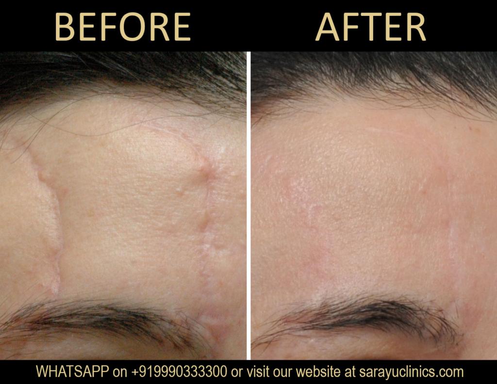 Facial Scar Removal Cream in Delhi