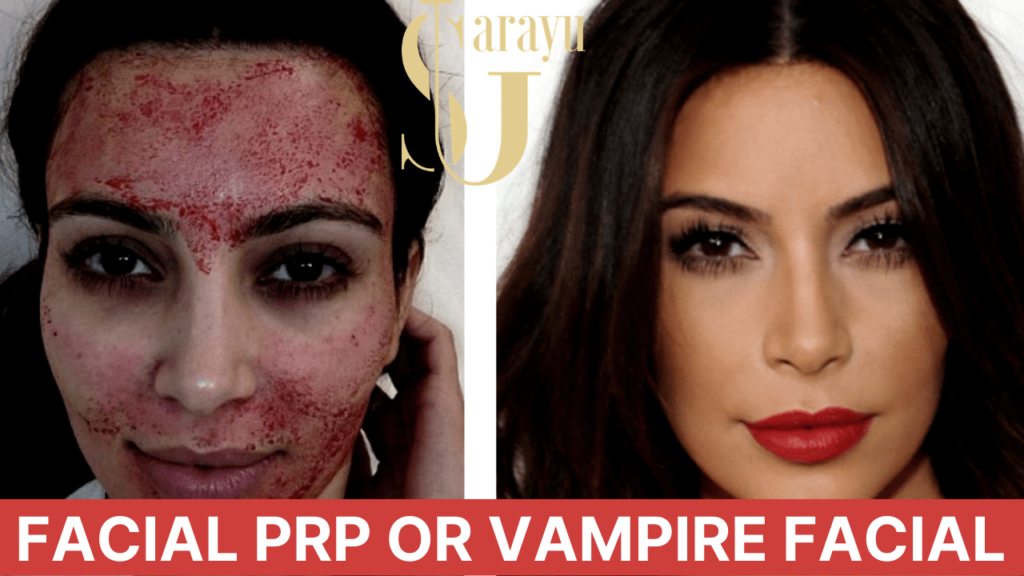 FACIAL PRP OR VAMPIRE THERAPY FOR FACIAL REJUVENATION TREATMENT IN DELHI | NON SURGICAL FACELIFT