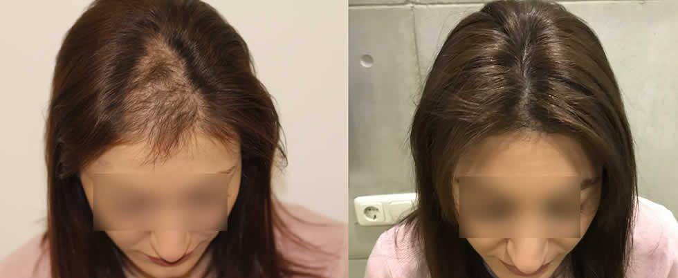Female Hair Transplant Cost