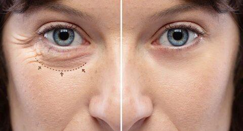 Eyelid Surgery in Delhi