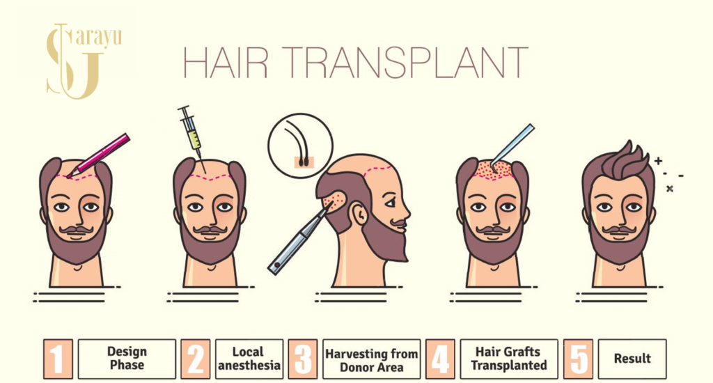 Hair Transplant Process in Delhi