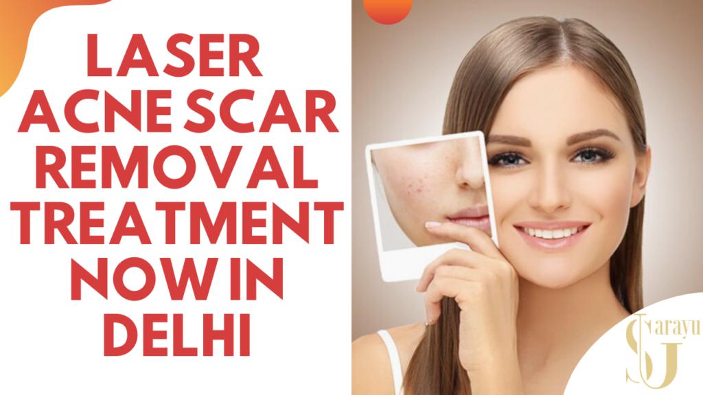 Laser Scar Reduction Treatment in Delhi