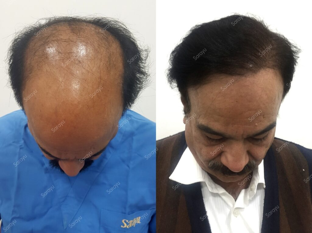 Fixing Bad Hair Transplant Results