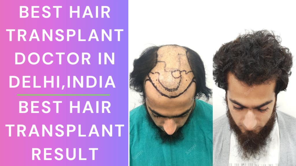 Best Hair Transplant Doctor in India | Best Hair Transplant Clinic in Delhi | Hair Transplant Result