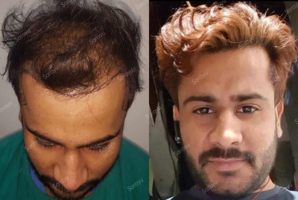 Best Hair Transplant Results in Delhi