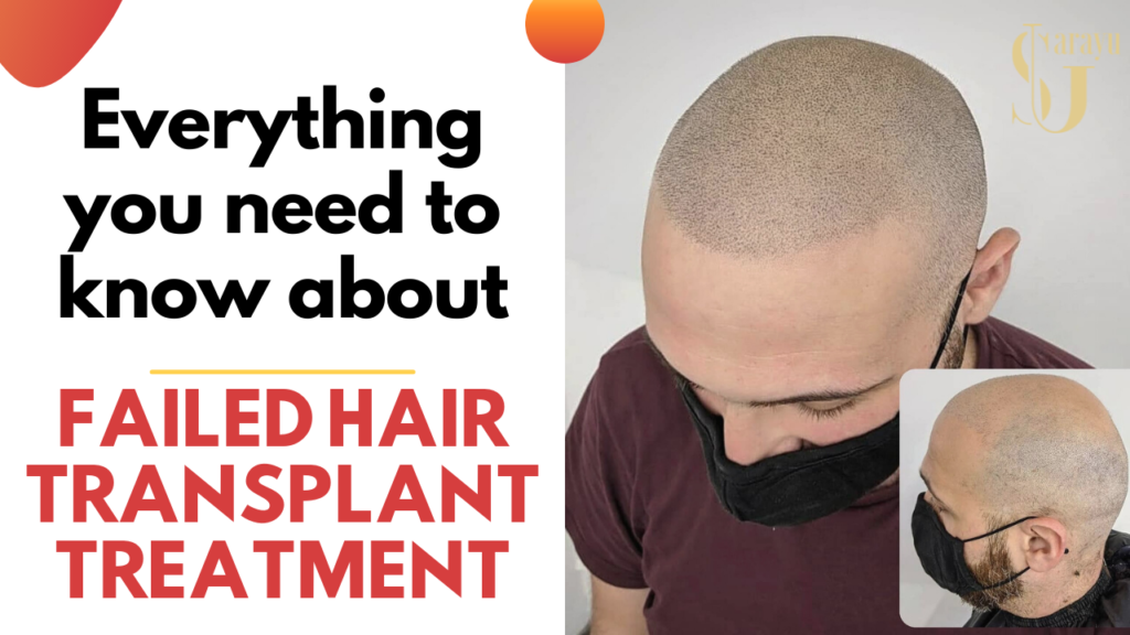Redoing Failed Hair Transplant Treatment in Delhi,India