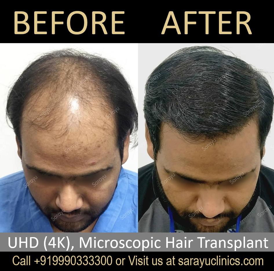 FUT Hair Transplant in Delhi