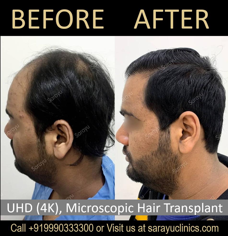 Hair Transplant EMI Facility in Delhi