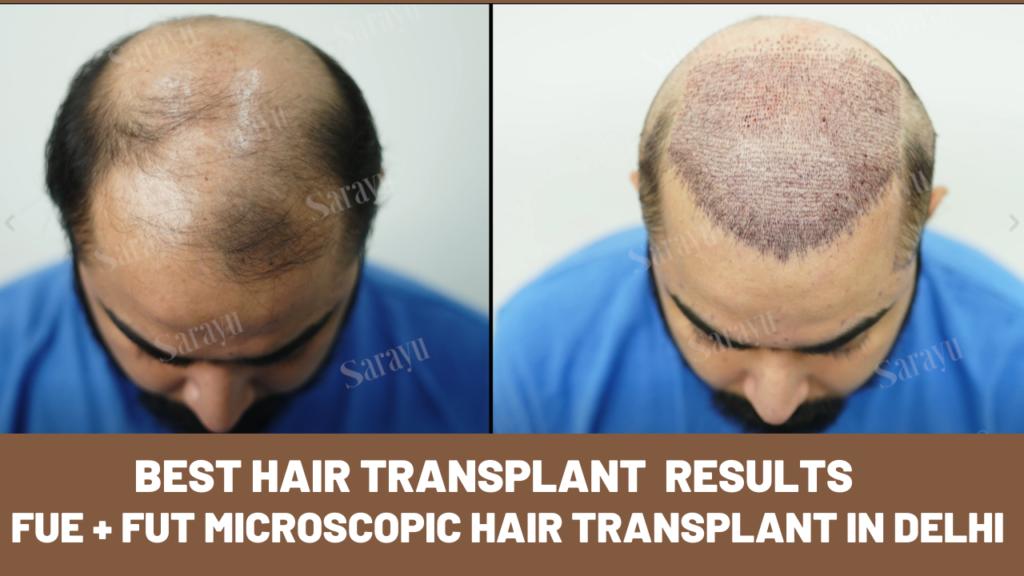 FUT + FUE Hair Transplant in Delhi at Sarayu Hair Clinics