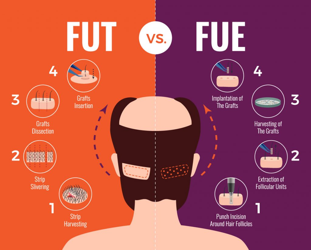 Which technique is better FUE or FUT Hair Transplant