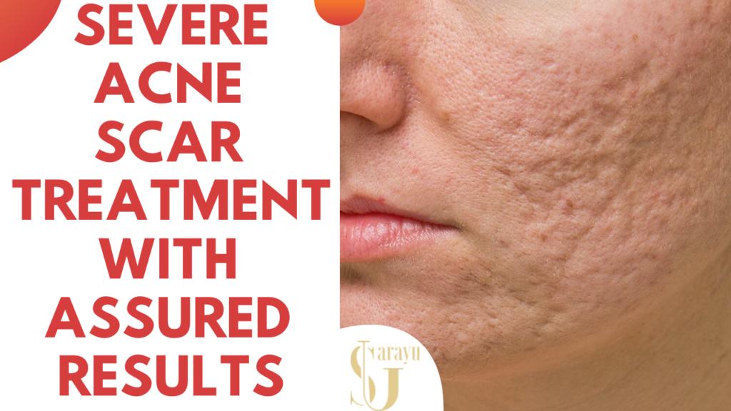 Best Acne Scar Treatment in Delhi | Facial Pimple Removal Treatment