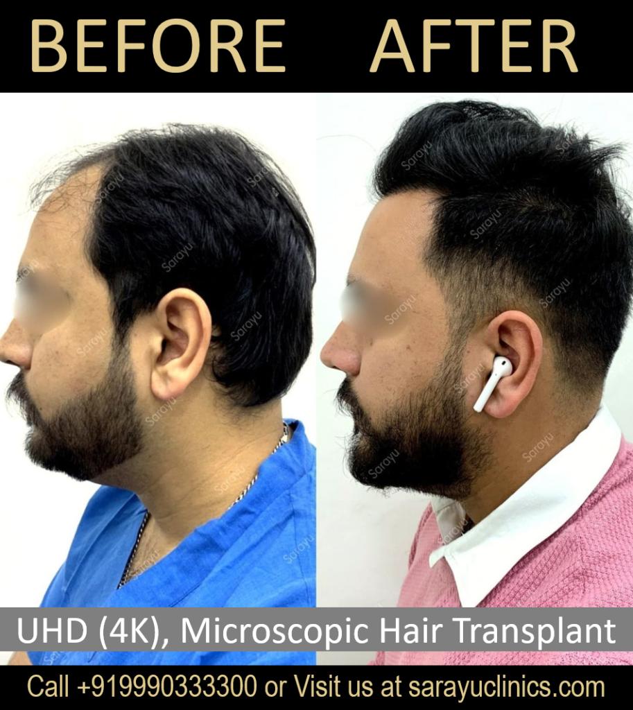 Price of FUT Hair Transplant in Delhi
