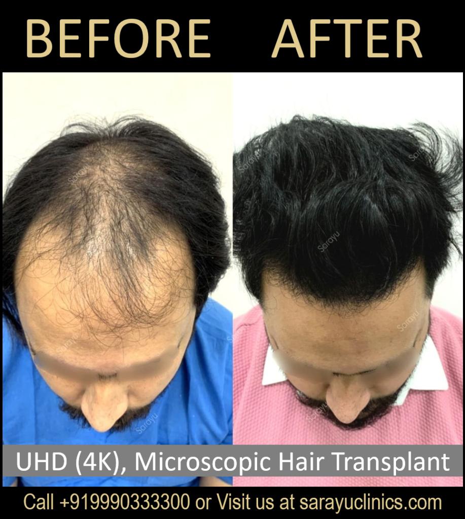 Cost of FUT Hair Transplant in Delhi