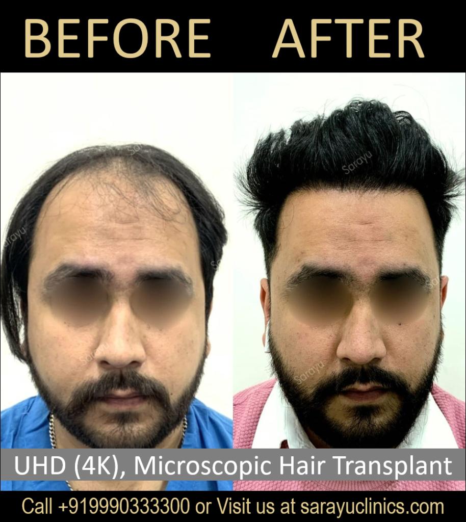 Best FUT Hair Transplant Clinic in Delhi