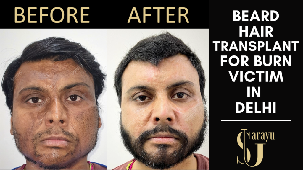 Beard Hair Transplant in Burn Patient in Delhi at Sarayu Clinics by Dr Adarsh Tripathi