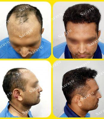 Hair Transplant Results in Delhi